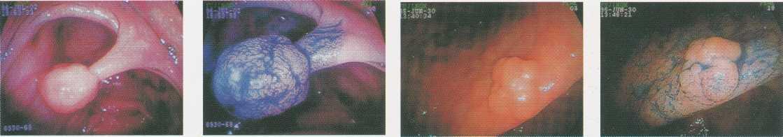 endeskopi-marker-1